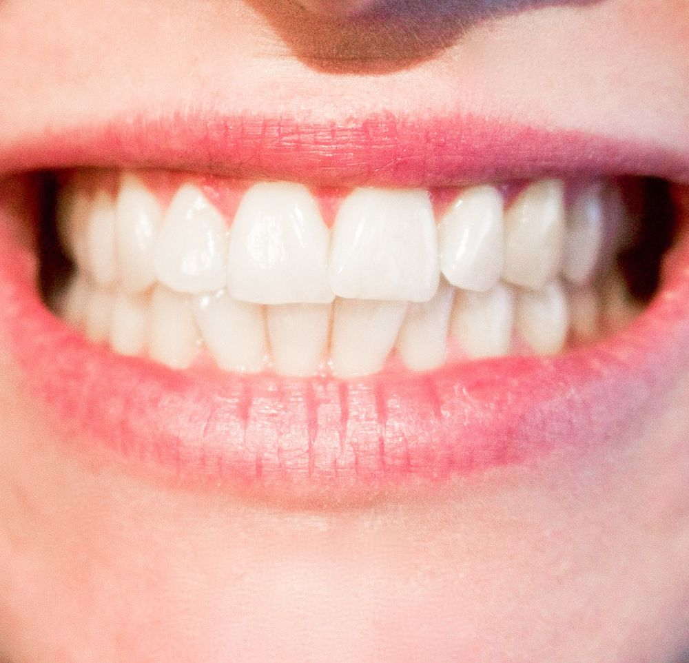 5 things you should know about dental whitening