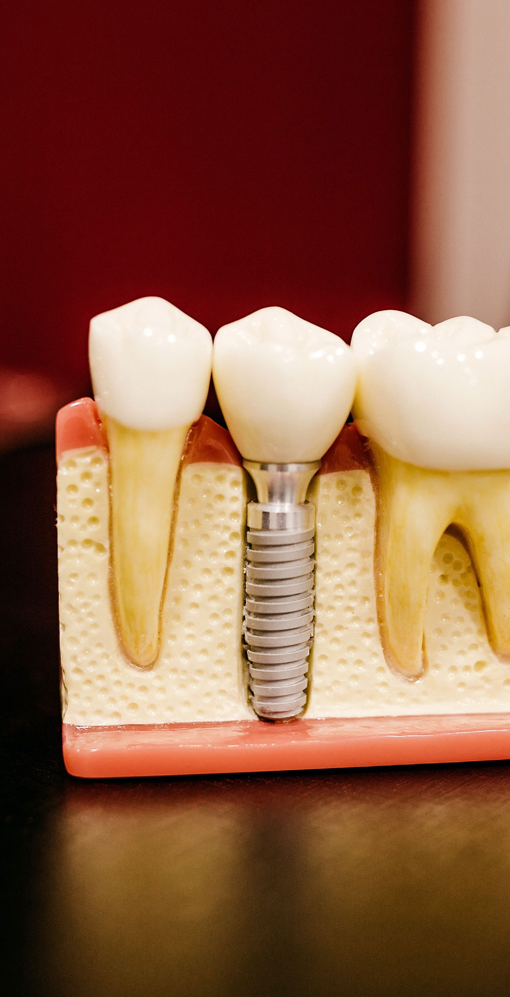 Dental implants in patients who have suffered from cancer