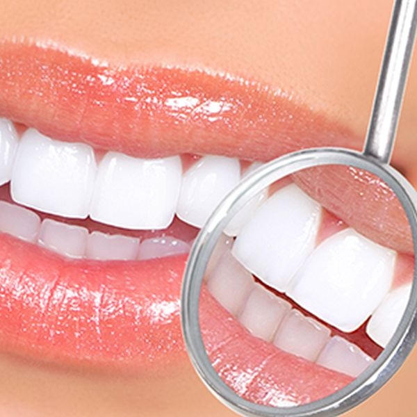 5 FAQs about dental cleaning