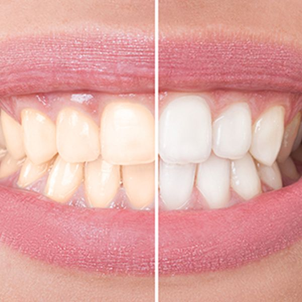 Teeth whitening and smokers
